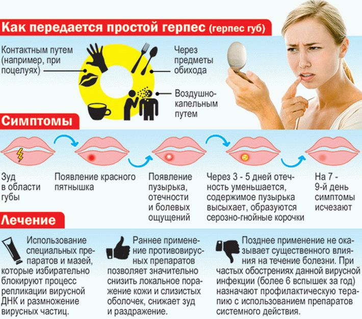 Герпес на губах профилактика таблетки