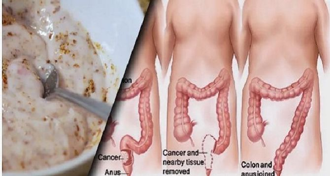 these-two-ingredients-remove-pounds-of-toxins-from-your-intestines_result