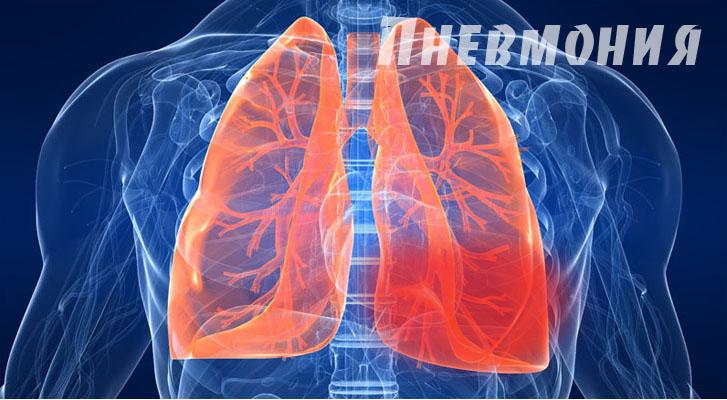 pnevmoniya-lechenie