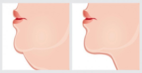 the-best-exercises-to-get-rid-of-double-chin-video-600x309