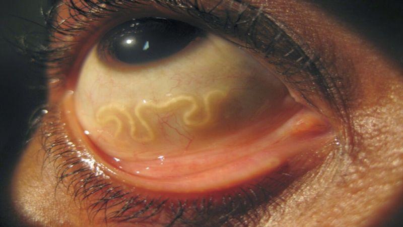 признаки наличия паразитов в организме человека лечение
