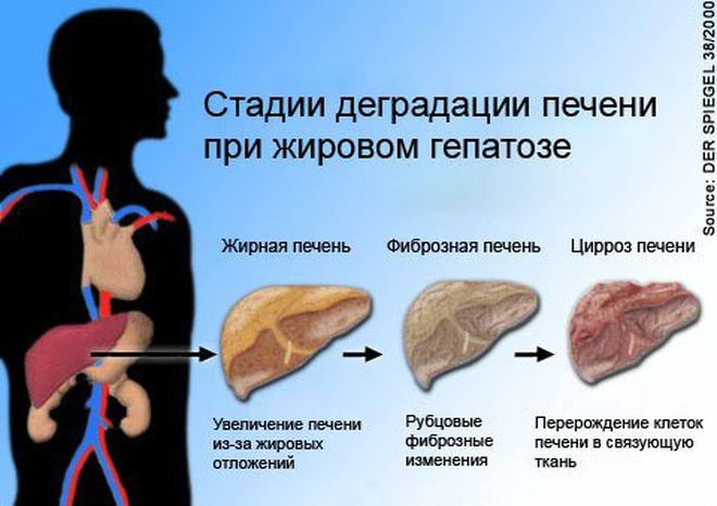 холестерин лпнп в крови что это такое