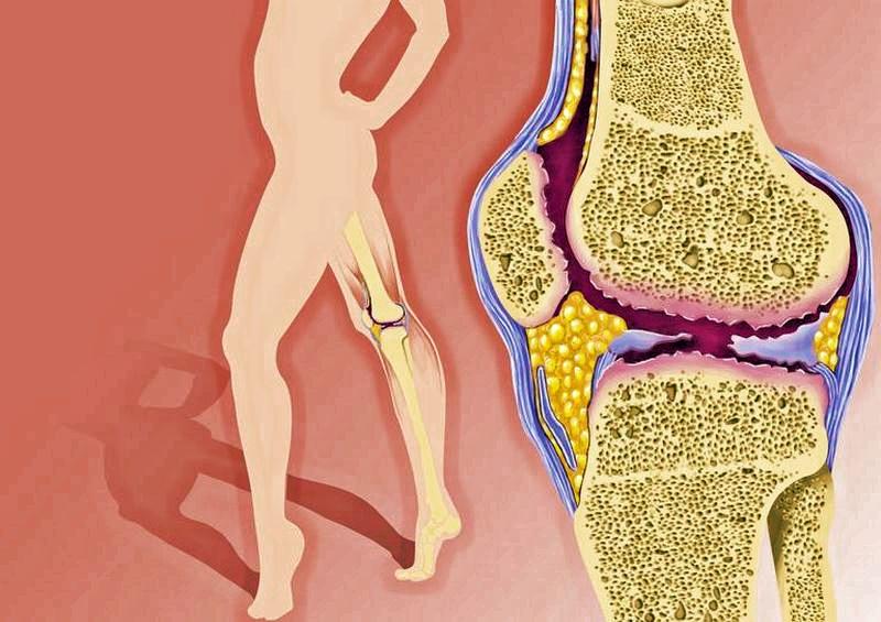 Больные суставы: как распознать первые симптомы остеоартрита