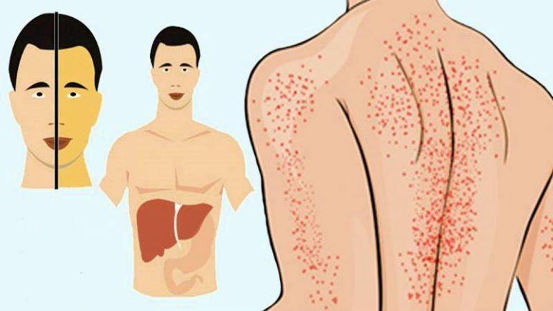 Первые симптомы болезни печени, знание которых может спасти вашу жизнь