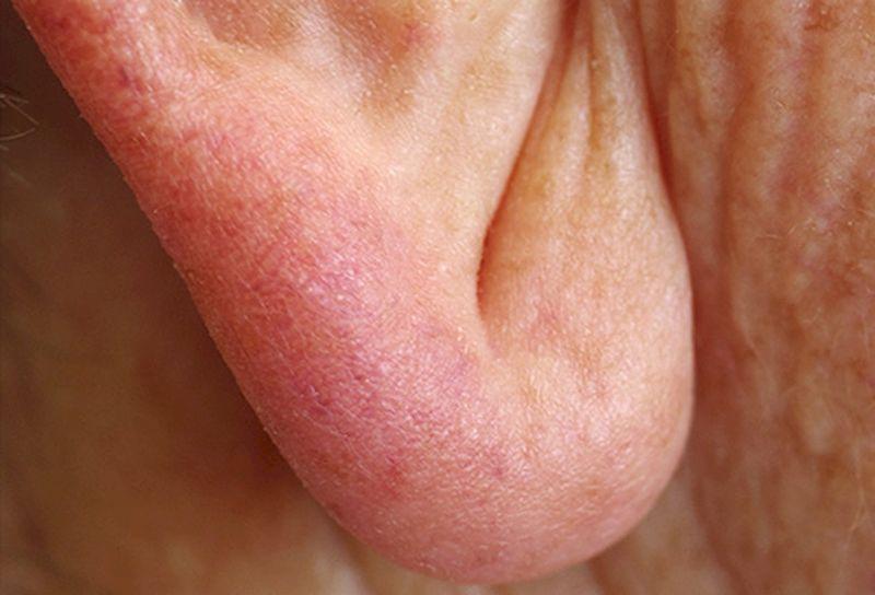 Диагональная складка в области мочки уха