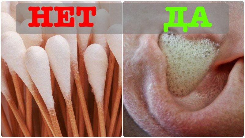 Бойтесь ватных палочек: ушная сера и как перекисью чистить уши